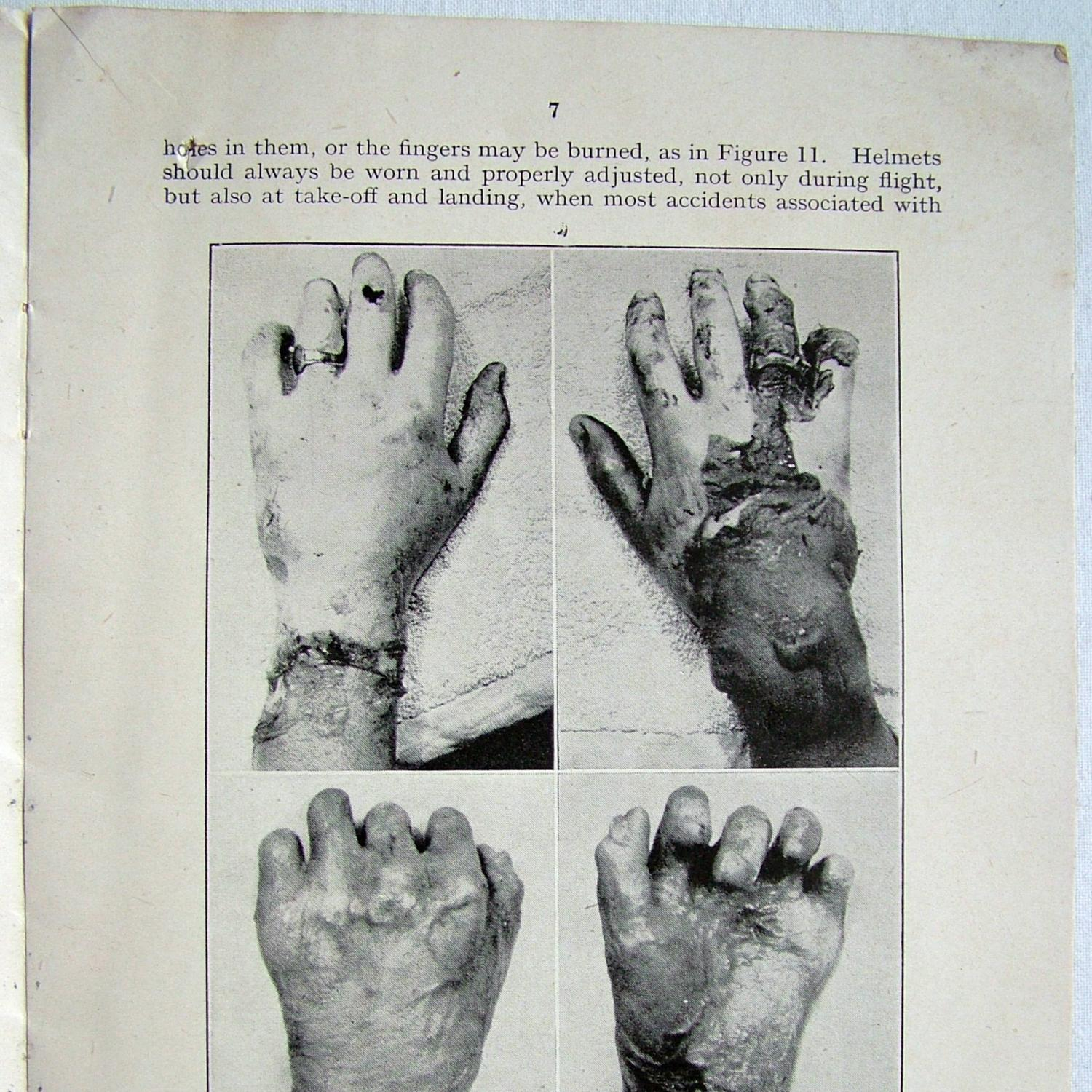 first aid treatment for burns pdf